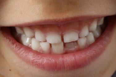 子供の虫歯は貧困が原因?医療費タダでもなぜ歯医者に連れて行かないか
